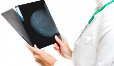 Mobile mammograms offered in Ironton on April 26